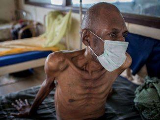 tuberculosis-patient